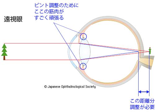 引用:日本眼科学会